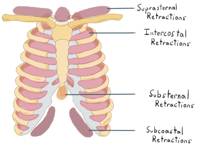 Retraction location - respiratory distress